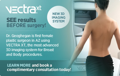 Vextra - See results before surgery!