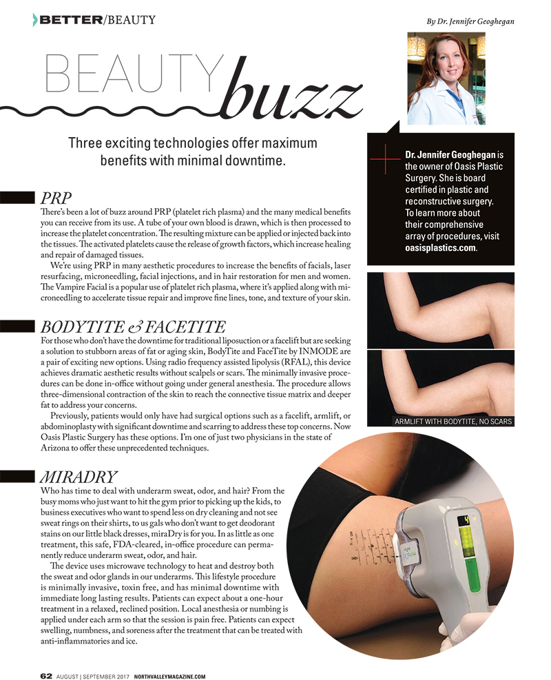 Aug-Sept 2017 Beauty Buzz: talking about PRP, BodyTite & FaceTite, MiraDry